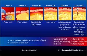 perkembangan plak aterosklerosis